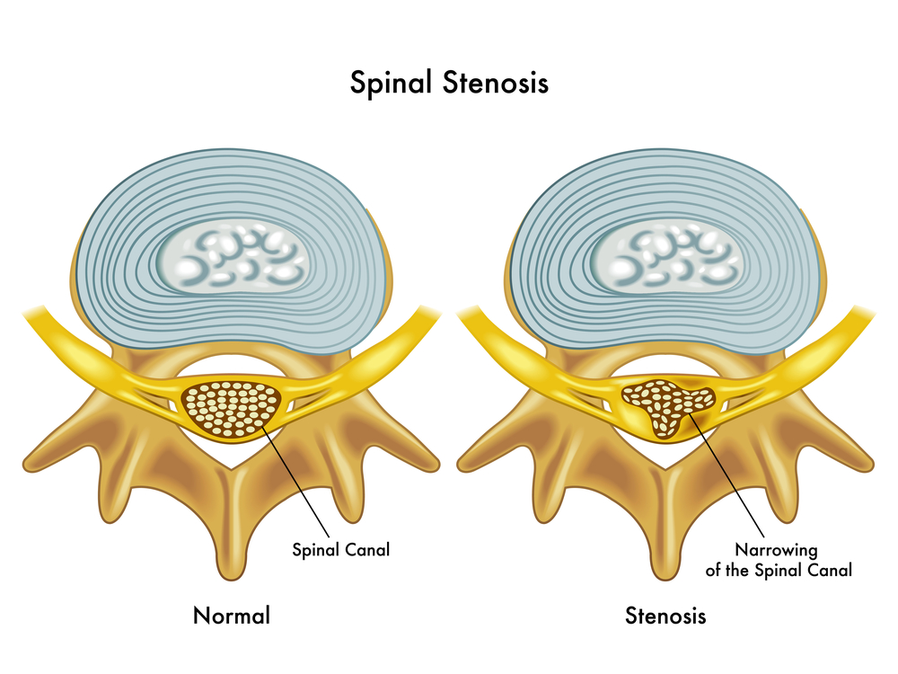 Spinal Decompression Thousand Oaks